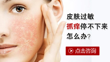 怎样治疗脸部皮肤过敏