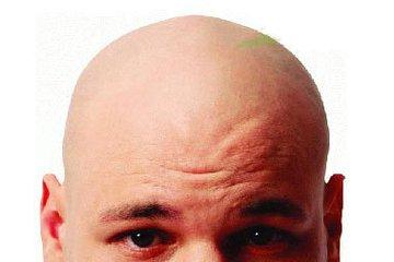 女性朋友脱发的原因都有那些