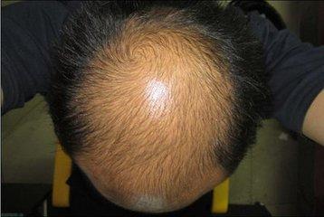 哪些人能容易患有脱发