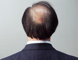 脱发的病因有哪些